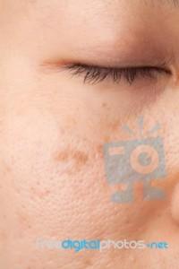 scar-skin-problem-100247666